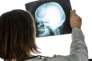 Doctor analyzing  x-ray of brain injury in hospital office during medical exam